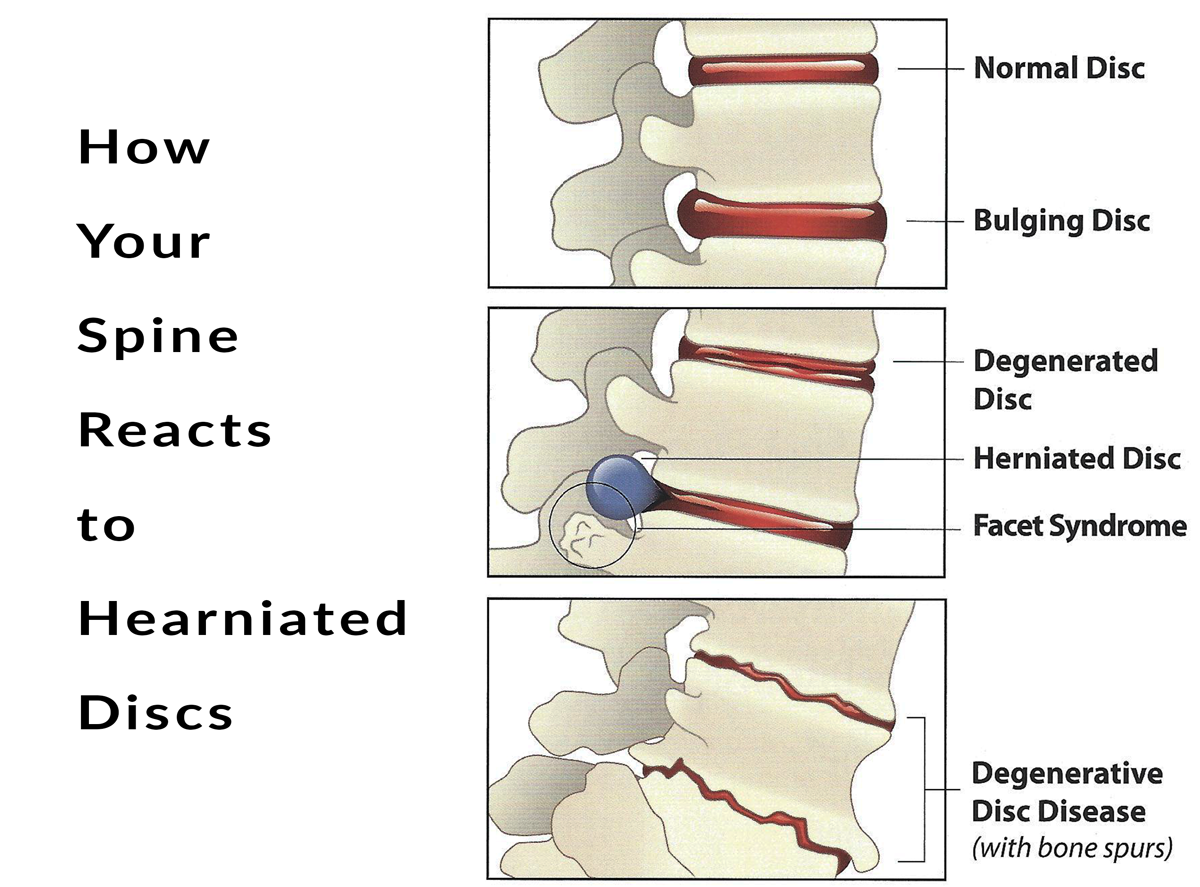 Spinal Decompression Therapy The Spine Center
