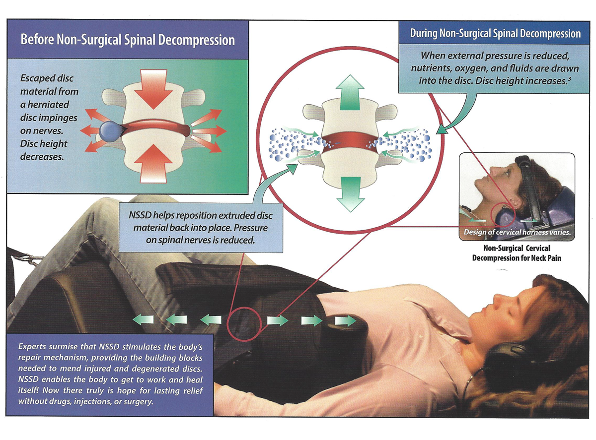 Spinal Decompression Therapy – The Spine Center